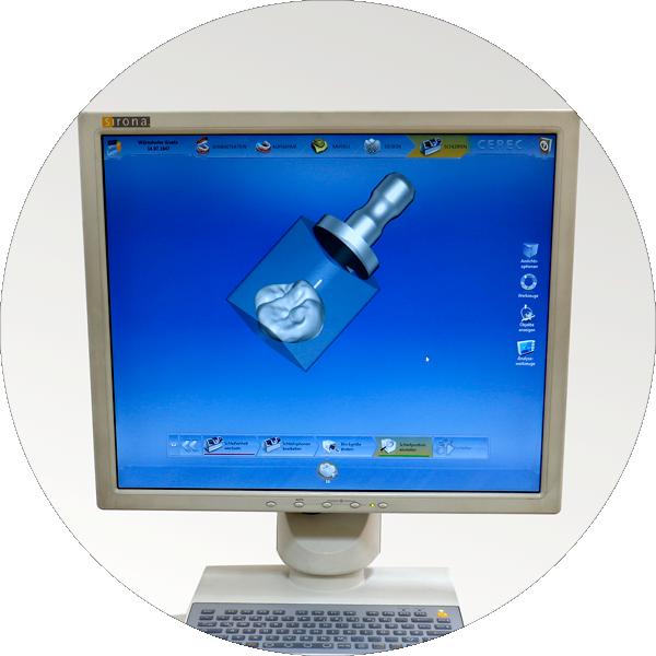 Cerec CAD/CAM Technologie