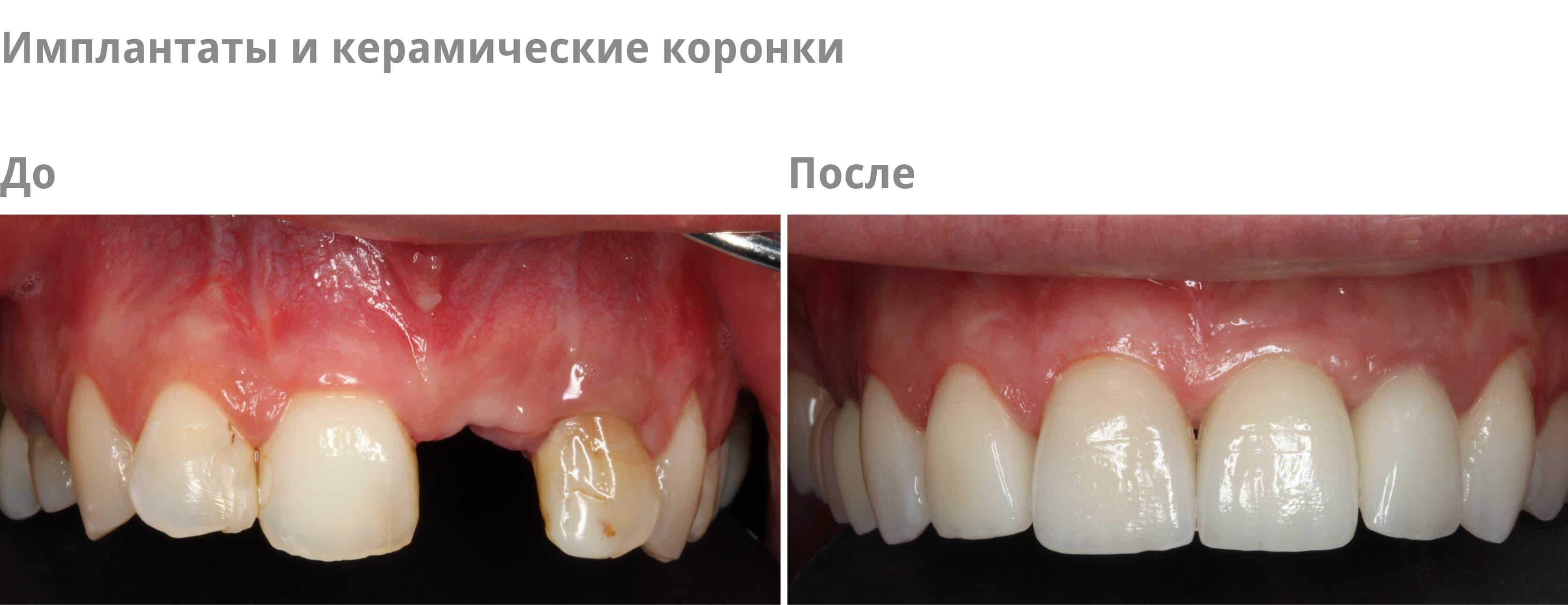 Plastische Schleimhautchirurgie